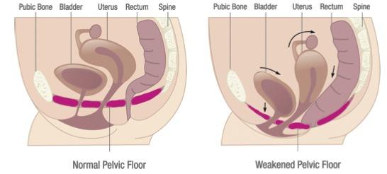 Pelvic Organ Prolapse | Beacon Therapy